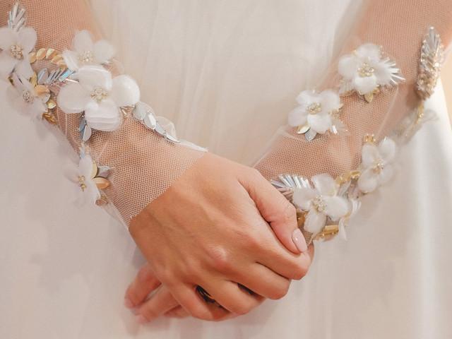 Alergia ao anel de noivado: eis o que precisas de saber!