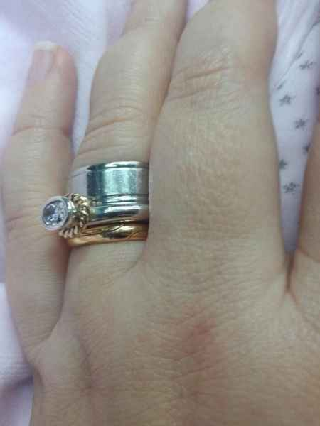 O anel-surpresa