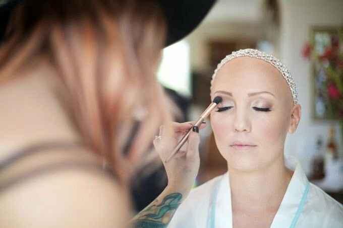 a Alopecia e o casamento - 1