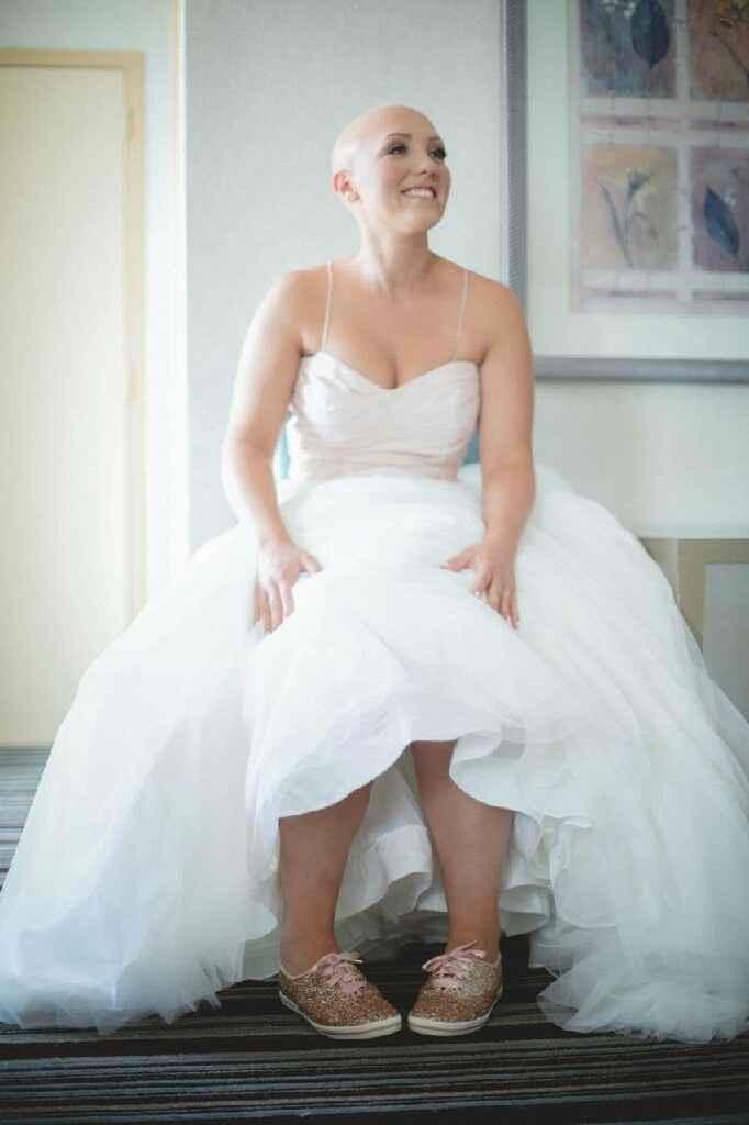 a Alopecia e o casamento - 2